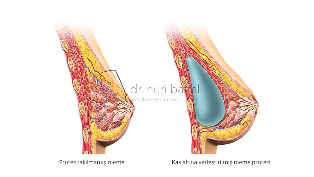 Kas Üstü Meme Protezi - Dr. Nuri Battal