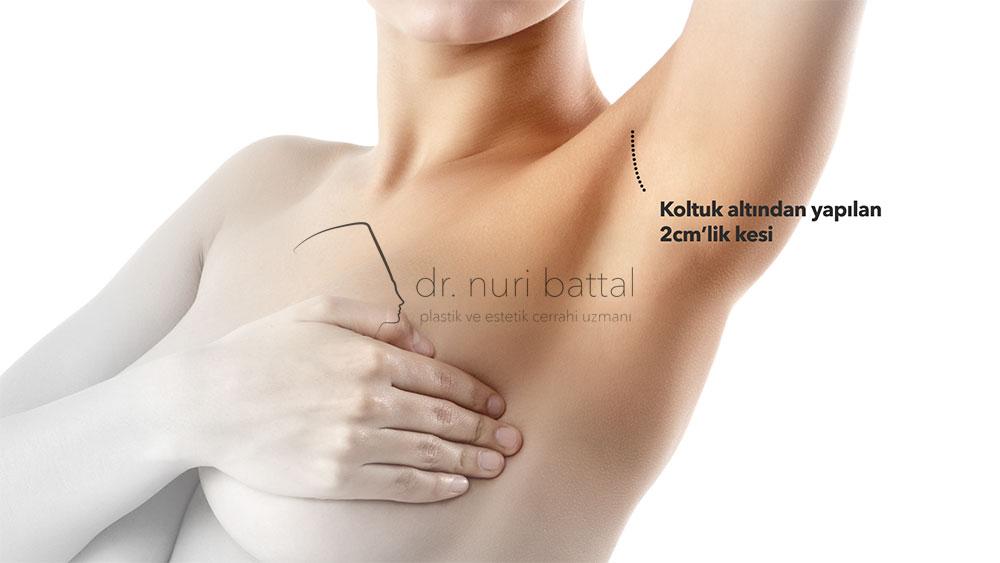 Koltuk Altından Meme Protezi - Dr. Nuri Battal